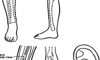 Акупунктурні знеболювання при оперативних втручаннях - голкотерапія в анестезіології та реаніматології