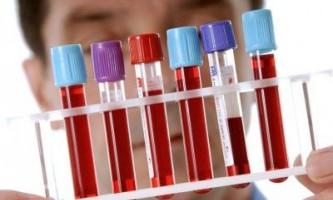Аналізи виявили гепатит c: що робити?