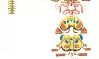 Анатомічні зображення - хронічна субдуральна гематома, епідуральна гематома, емболія задньої мозкової артерії - діагностика нервових хвороб