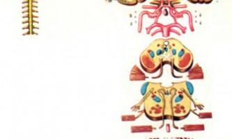 Анатомічні зображення - розсіяний склероз, сірінгобульбія, хорея гентінгтона - діагностика нервових хвороб