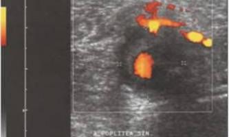 Аневризма, вроджені захворювання - ультразвукове дослідження судин