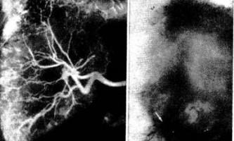 Ангіографія при спадкової геморагічної телеангіектазії - діагностична радіологія 1979