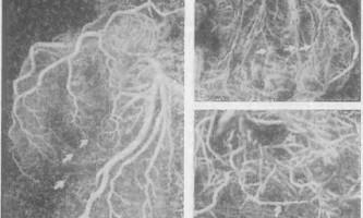 Атеросклероз: анатомія коронарних артерій - динаміка серцево-судинної системи