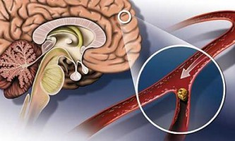 Атеросклероз судин головного мозку: симптоми і лікування проблеми