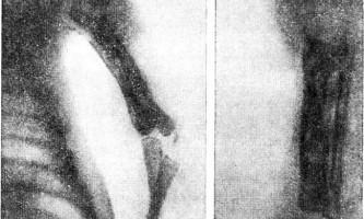 Атипові форми - остеомієліт у дітей