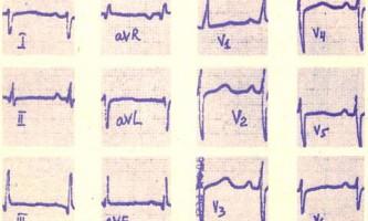 Атрезія легеневої артерії при інтактною міжшлуночкової перегородки - посібник з клінічної електрокардіографії дитячого віку