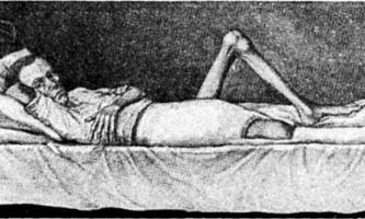 Атрофія кінцівки як ускладнення остеомієліту - остеомієліт у дітей