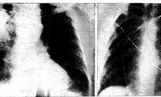 Бактеріальна інебактеріальних пневмонія - діагностична радіологія 1979 ч.2