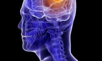 Білки можуть допомогти впоратися зі смертельно небезпечною пухлиною мозку