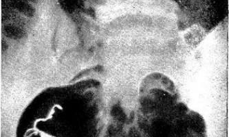 Безпліддя і контури матки - діагностична радіологія 1 979 ч.2