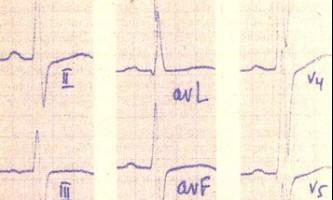 Блокада лівої передньої гілки передсердно-шлуночкового пучка - посібник з клінічної електрокардіографії дитячого віку