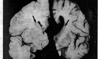 Хвороба гентінгтона, прогресивний супрануклеарний параліч, паранеопластический синдром - психіатрія пізнього віку