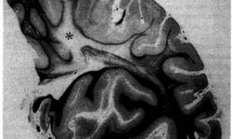 Хвороба паркінсона, хвороба з дифузними тільцями леві та деменція - психіатрія пізнього віку