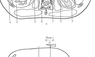 Черевна порожнина і таз - гамма-терапія злоякісних пухлин