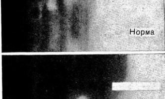 Бронхіальна стінка в рентгенодіагностиці астми - діагностична радіологія тисячі дев`ятсот сімдесят дев`ять ч.2