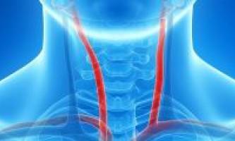 Чим загрожує аневризма сонної артерії, прогноз лікування