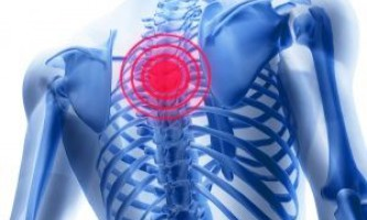 Чим і як лікувати грудної остеохондроз в домашніх умовах