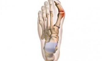 Чим і як краще лікувати бурсит великого пальця стопи