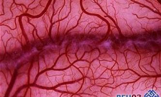 Що робити при атеросклерозі судин нижніх кінцівок