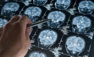 Що провокує стеноз судин головного мозку і його лікування