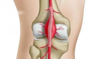Що таке аневризма стегнової і підколінної артерії, чим небезпечна?