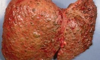 Цироз печінки може перейти в рак?