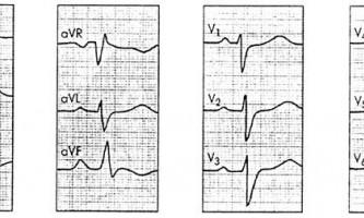 Діагностика та обстеження - хронічне легеневе серце