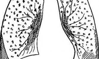 Дисеміновані форми і плеврити у дітей - довідник лікаря-фтизіатра