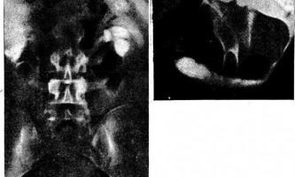 Дивертикул передньої уретри і гідроуретеронефроз - діагностична радіологія тисячі дев`ятсот сімдесят дев`ять ч.2