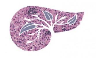 Доброякісні новоутворення в печінці: симптоми, діагностика та лікування