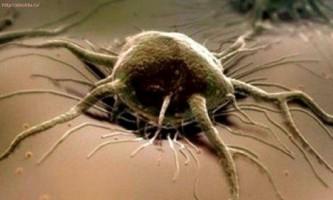 Якщо знизилися лейкоцити в крові при проходженні хіміотерапії. Онкологія.