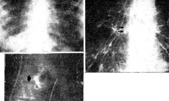 Фіброзний медіастиніт - діагностична радіологія 1 979 ч.2