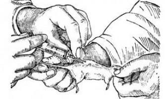 Форми поширення інфекційних захворювань - мікробіологія з технікою мікробіологічних досліджень