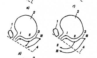 Функціонування запирательного апарату уретри і сечового міхура при опущеннях стінок піхви і матки - нетримання сечі при напрузі у жінок