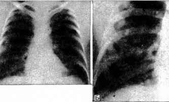Гіалінізірующая гранульома легких - діагностична радіологія тисячі дев`ятсот сімдесят дев`ять ч.2