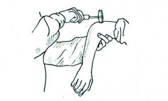 Глибокі рефлекси - практикум з нервових хвороб і нейрохірургії