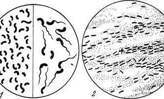 Холерний вібріон - мікробіологія з технікою мікробіологічних досліджень