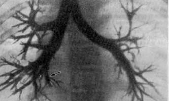 Хронічні нагноїтельниє захворювання легенів у дітей - помилки рентгенологів - помилки і небезпеки в хірургії дитячого віку