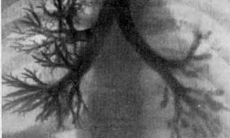 Хронічні нагноїтельниє захворювання легенів у дітей - помилки хірургів загальнохірургічних відділень - помилки і небезпеки в хірургії дитячого віку