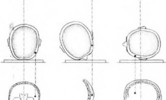 Сторонні тіла при вогнепальні поранення черепа - невідкладна рентгенодіагностика