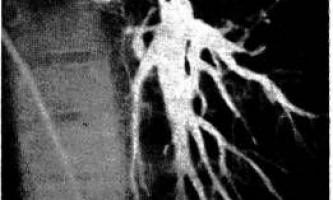 Дослідження легеневої атрезії з дефектом міжшлуночкової перегородки - діагностична радіологія 1979