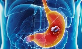 Дослідникам вдалося виявити молекулу, яка може продовжити життя хворим на рак шлунка