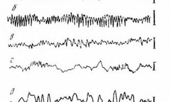Зміни еег при різних функціональних станах мозку - клінічна електроенцефалографія