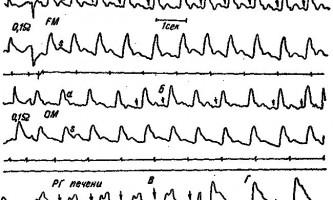 Зміни реоенцефалограми при гепато-церебральної дистрофії - клінічна реоенцефалографія