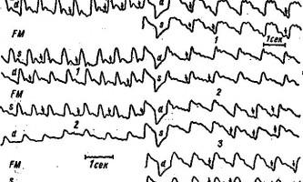 Зміни реоенцефалограми при закритих травмах мозку - клінічна реоенцефалографія