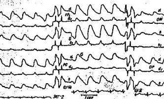 Зміни рег при поєднаних ураженнях сонної і хребетної артерій - клінічна реоенцефалографія