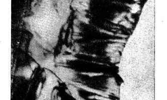 Зміни в дванадцятипалій кишці при сімейному поліпозі товстої кишки - діагностична радіологія одна тисяча дев`ятсот сімдесят дев`ять ч.2