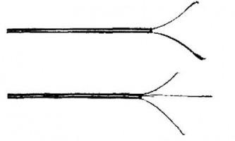 Витяг чужорідних тіл з трахеї і бронхів - посібник з клінічної ендоскопії
