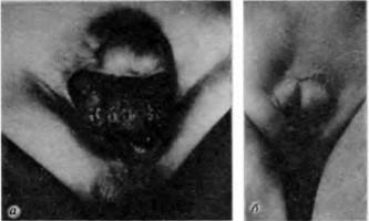 Екстрофія сечового міхура - основи практичної урології дитячого віку