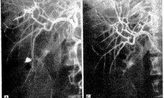 Емболізація печінкової артерії для зупинки кровотечі після травми - діагностична радіологія 1979